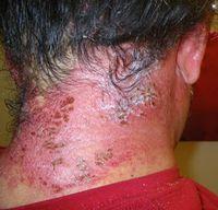JD's Chemical Hair Dye Allergy. BE SAFE.