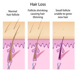Hair loss causes.