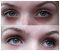 Vanish Dark Circles Under Eyes with Natural Skin Treatment - by L.J. O'Neal, writer.