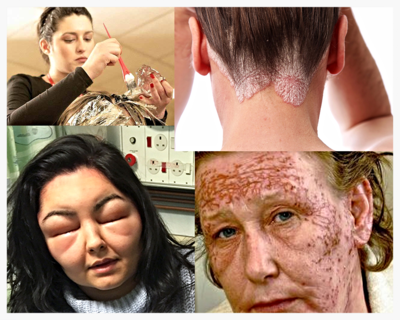 Allergic Contact Dermatitis from PPD in Hair Dye – Be Aware, by L.J.O'Neal, writer.