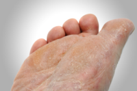 Natural Remedies for Athlete's Foot Care and Prevention –by L.J. O'Neal, writer.