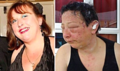 Allergic Reaction to PPD Can Be Shocking –Graphic Image Warning–by L.J. O'Neal, writer.